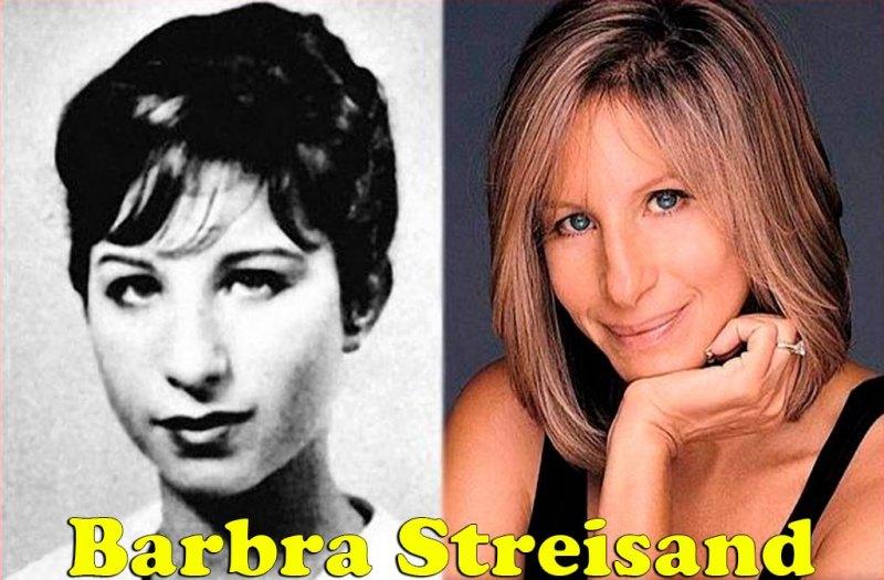 famosos_antes_y_despues_elredondelito.es_Barbra_Streisand_037