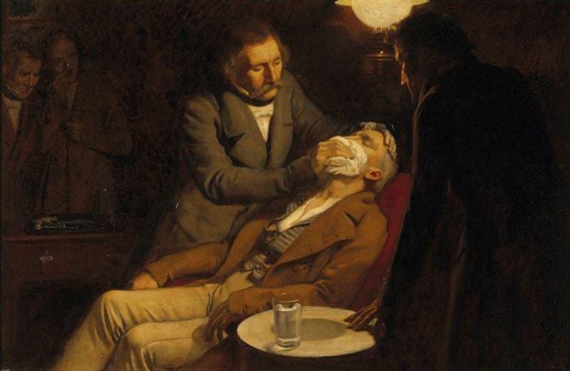 Método de anestesia con éter