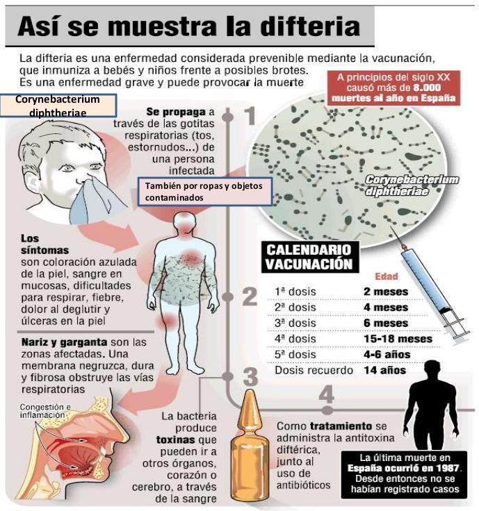 Difteria