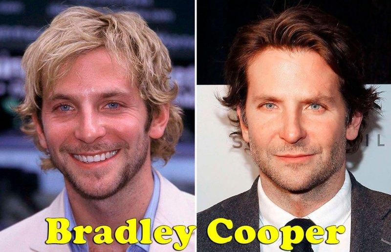 famosos_antes_y_despues_elredondelito.es_Bradley_Cooper_055