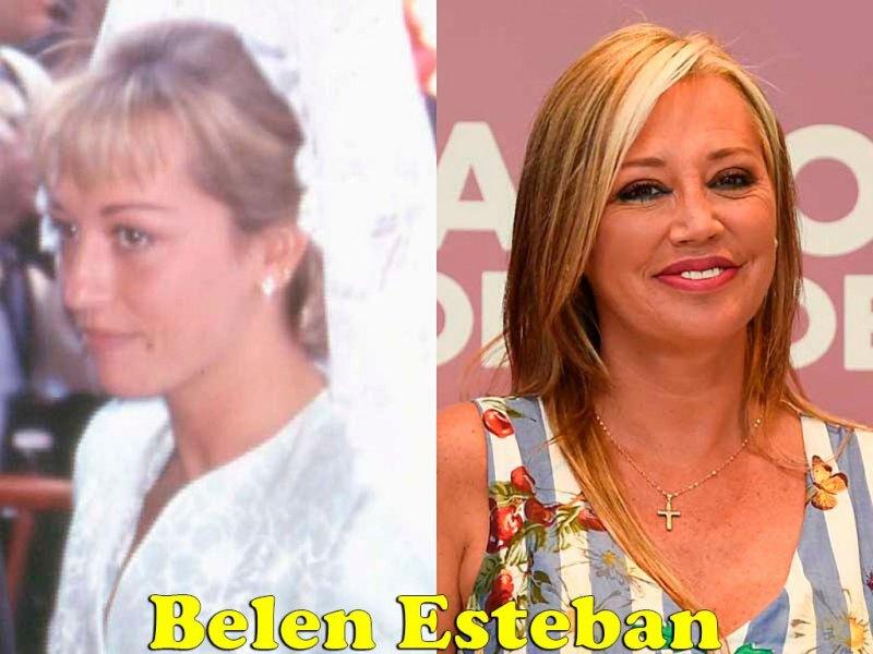 famosos_antes_y_despues_elredondelito.es_belen_esteban_038