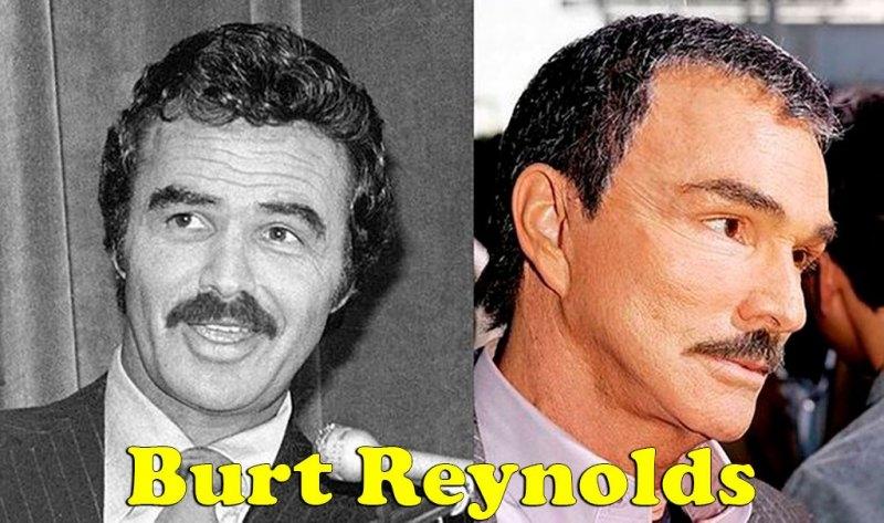 famosos_antes_y_despues_elredondelito.es_burt_reynolds_064