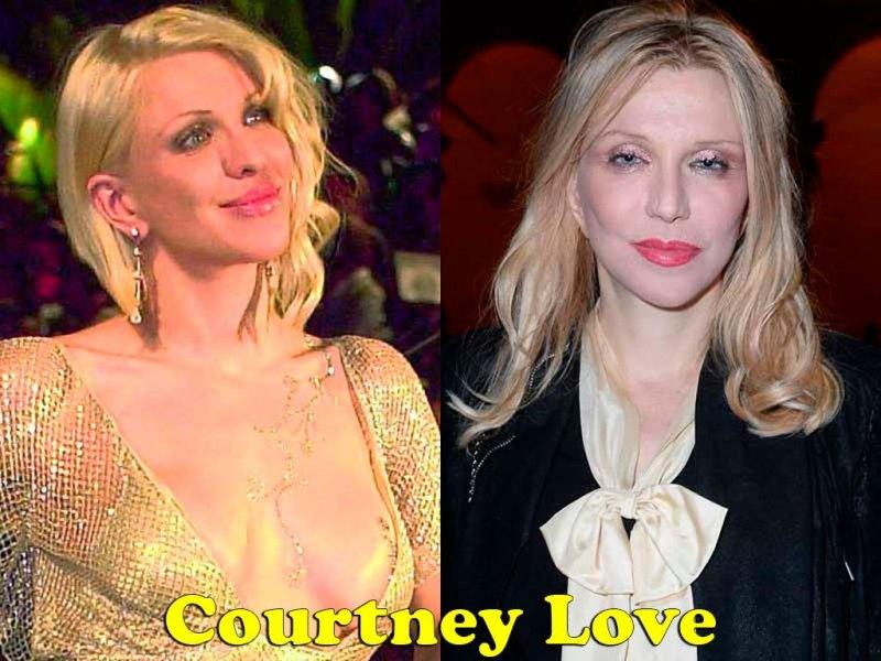 famosos_antes_y_despues_elredondelito.es_courtney-love_092