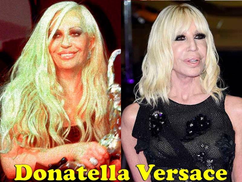 famosos_antes_y_despues_elredondelito.es_donatella-versace_116