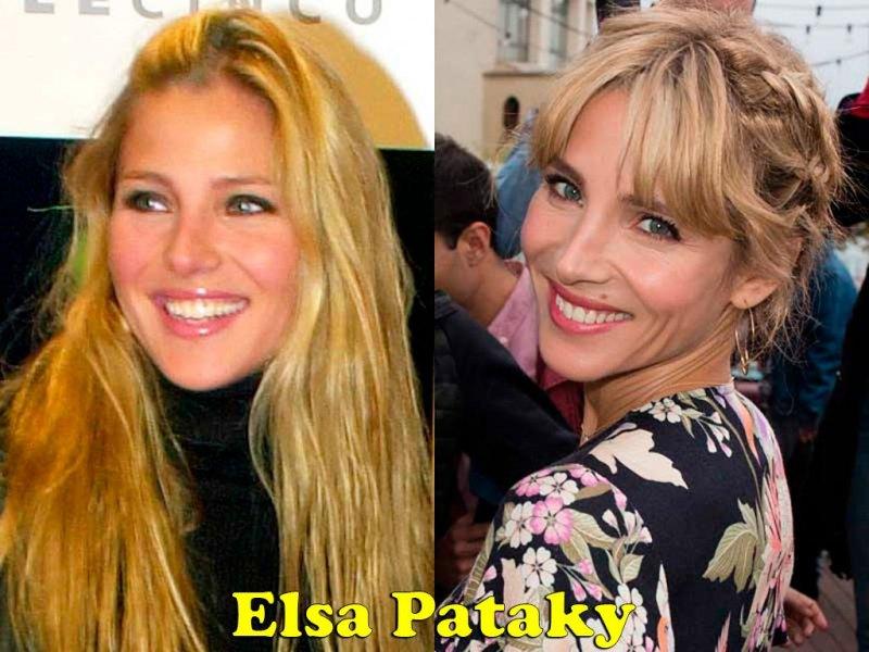 famosos_antes_y_despues_elredondelito.es_elsa-pataky_128