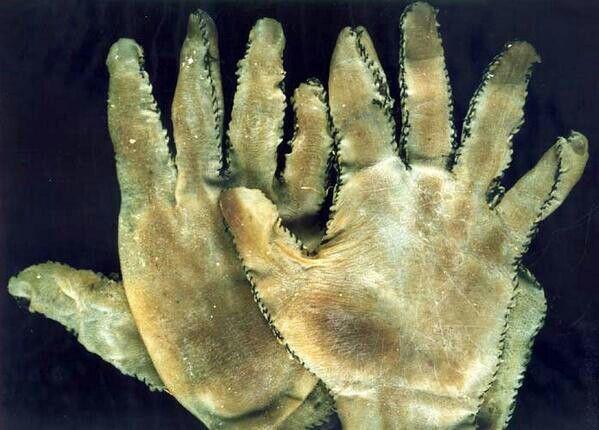 Guantes creados por Ed Gein a partir de piel humana. Se puede apreciar las toscas costuras para unir las piezas