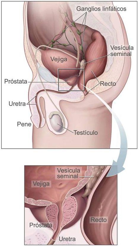 Imagen de donde esta la prostata